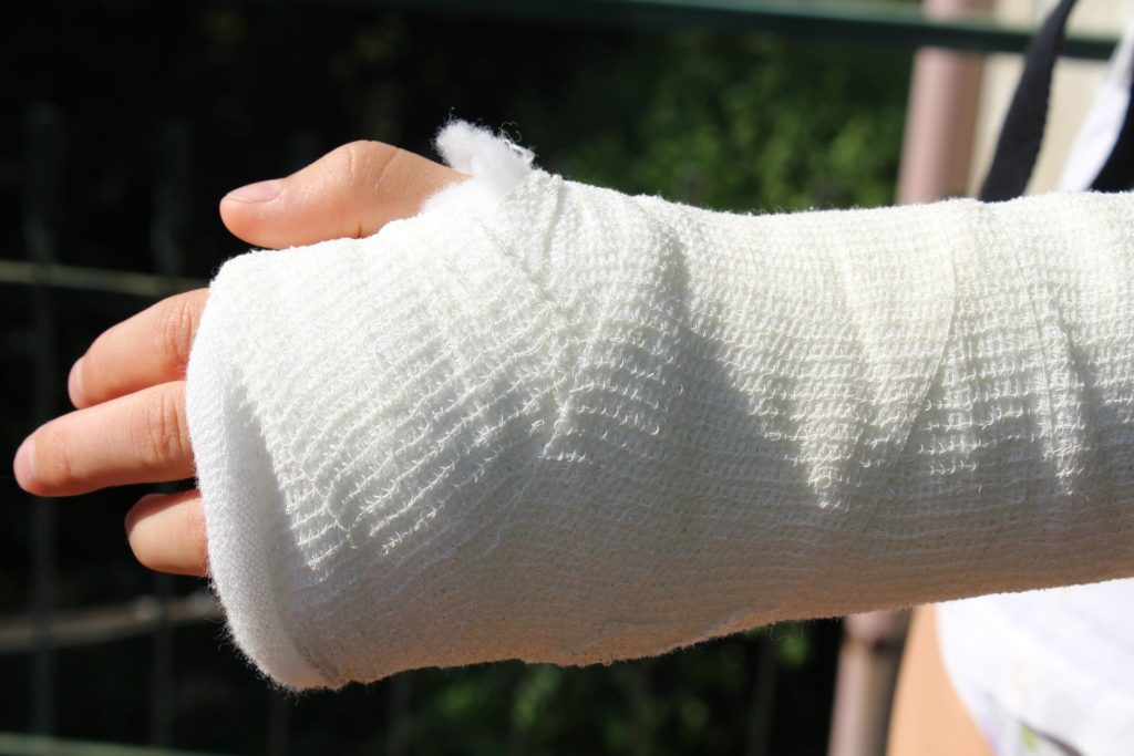 骨折した腕